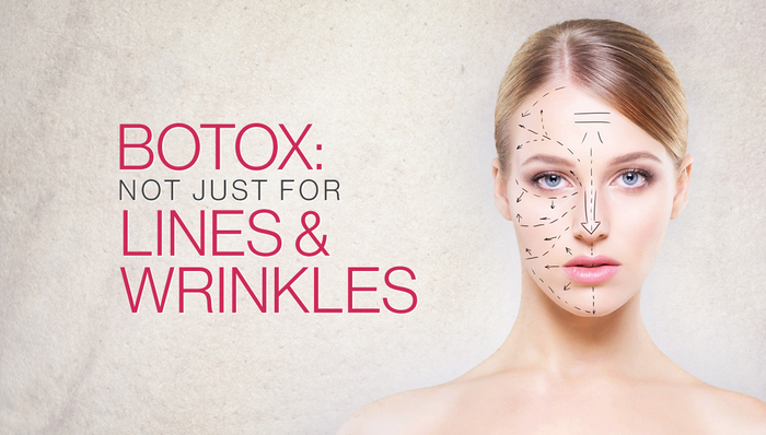botox- not just for lines and wrinkles